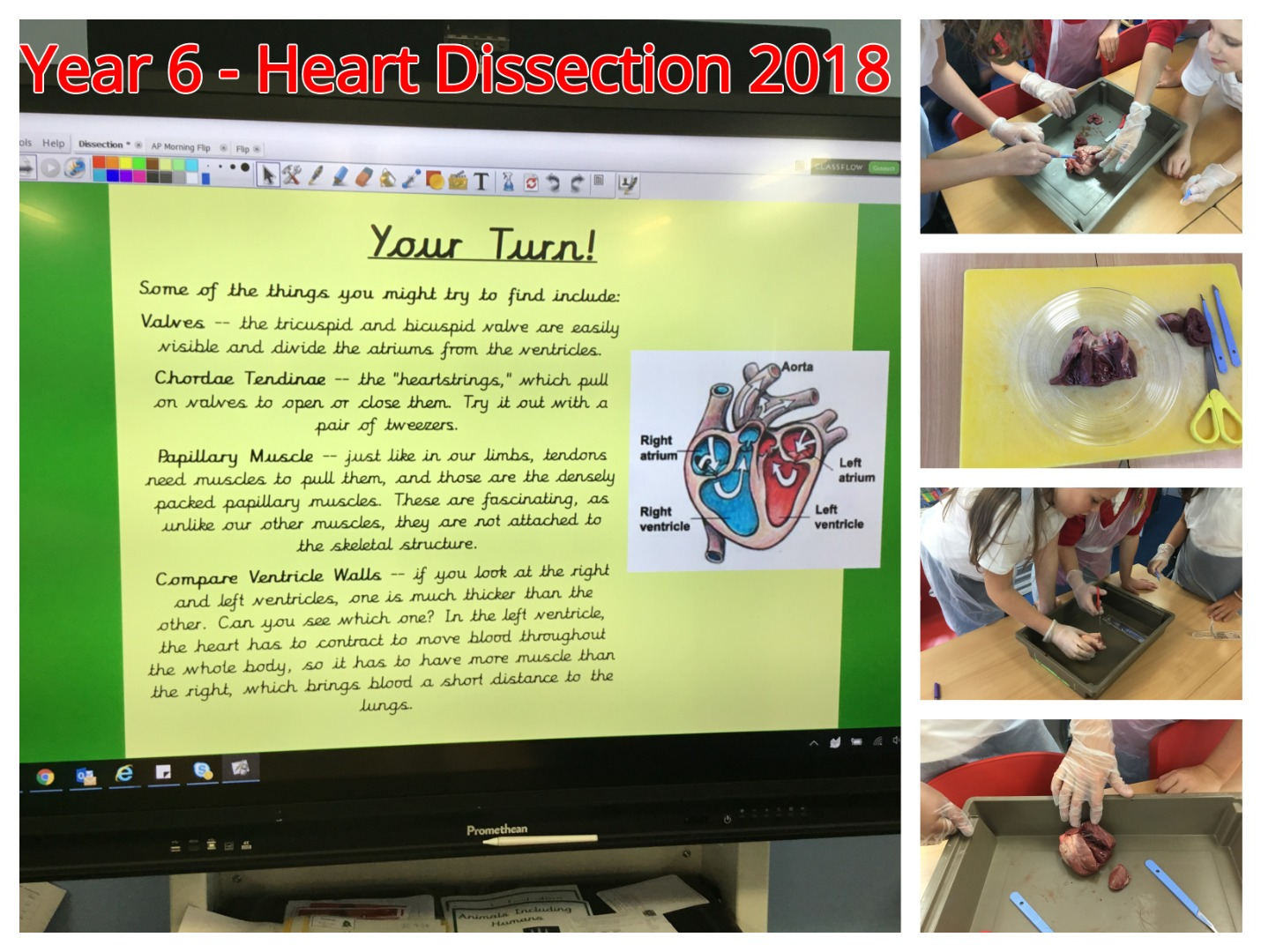Heart Dissection Collage.jpg